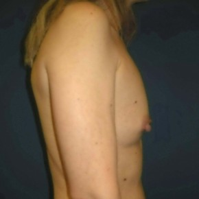 Before Photo - Breast Augmentation - Case #11125 - Breast Augmentation using Memory Shape Gel Implants - Lateral View