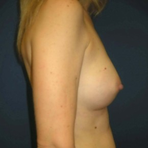 After Photo - Breast Augmentation - Case #11125 - Breast Augmentation using Memory Shape Gel Implants - Lateral View