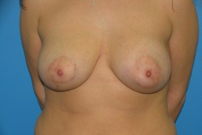 After Photo - Breast Augmentation - Case #11132 - Breast Augmentation/Breast Reduction for asymmetry - Frontal View