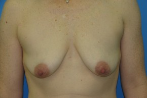 Before Photo - Breast Augmentation - Case #11137 - Frontal View