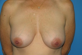 After Photo - Breast Augmentation - Case #11137 - Frontal View