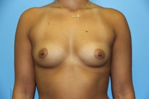 Before Photo - Breast Augmentation - Case #11138 - Frontal View