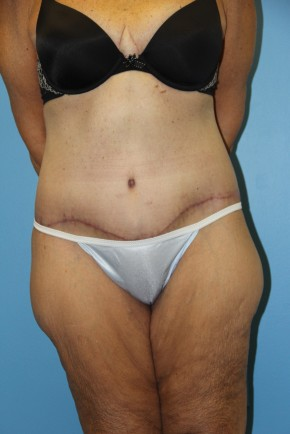 After Photo - Lower Body Lift - Case #11154 - body lift - Frontal View