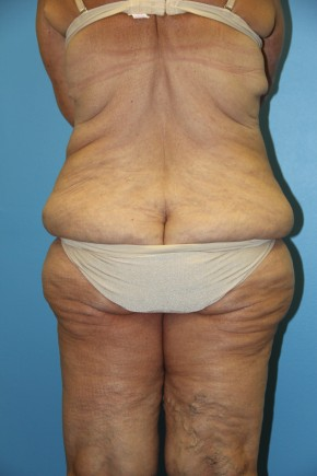 Before Photo - Lower Body Lift - Case #11154 - body lift - Posterior View