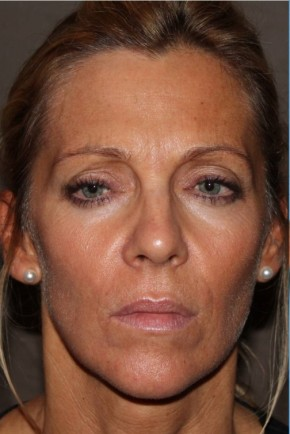 Before Photo - Botulinum Toxin - Case #11160 - Botox - Frontal View