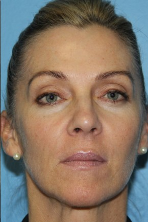 After Photo - Botulinum Toxin - Case #11160 - Botox - Frontal View