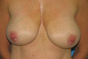 Before Photo - Breast Reduction - Case #11162 - Frontal View