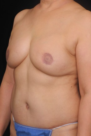 After Photo - Breast Reconstruction - Case #11169 - 52 y/o - Immediate DIEP Flap Breast Reconstruction - Oblique View