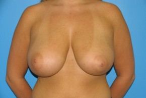Before Photo - Breast Reduction - Case #11172 - Frontal View