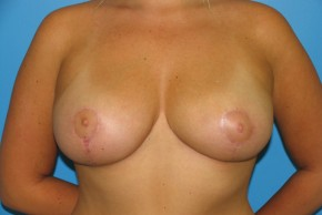 After Photo - Breast Reduction - Case #11172 - Frontal View