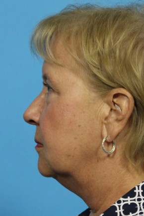 Before Photo - Facial Rejuvenation - Case #11184 - Full Facial Rejuvenation - Lateral View