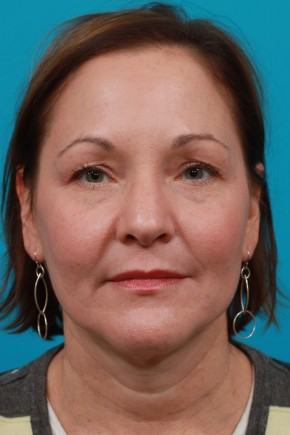 Before Photo - Facial Rejuvenation - Case #11185 - Frontal View
