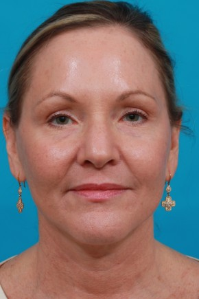 After Photo - Facial Rejuvenation - Case #11185 - Frontal View