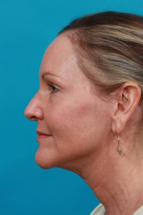 After Photo - Facial Rejuvenation - Case #11185 - Lateral View