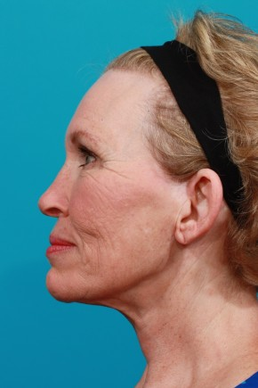After Photo - Facial Rejuvenation - Case #11186 - Full Facial Rejuvenation - Lateral View