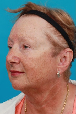 Before Photo - Facial Rejuvenation - Case #11187 - Oblique View