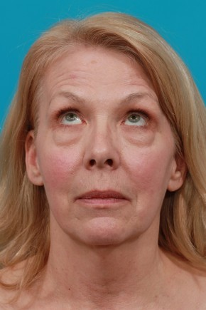 Before Photo - Facial Rejuvenation - Case #11189 - Worm's Eye View