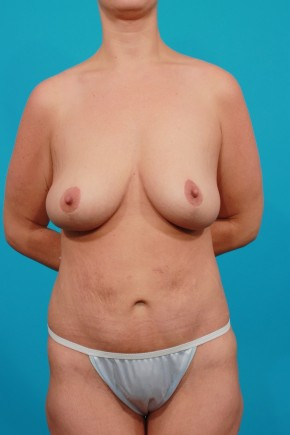 After Photo - Plastic Surgery After Dramatic Weight Loss - Case #11192 - Surgery after MWL - Frontal View