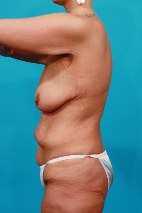 Before Photo - Plastic Surgery After Dramatic Weight Loss - Case #11192 - Surgery after MWL - Lateral View