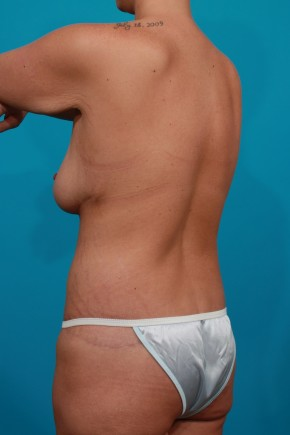 After Photo - Plastic Surgery After Dramatic Weight Loss - Case #11192 - Surgery after MWL - Posterior Oblique View