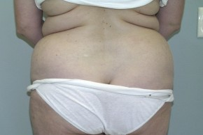 Before Photo - Liposuction - Case #11199 - Liposuction Abdomen/Back - Posterior View