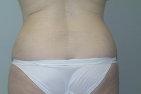 After Photo - Liposuction - Case #11199 - Liposuction Abdomen/Back - Posterior View