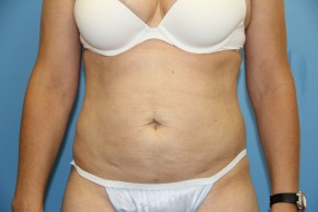 After Photo - Liposuction - Case #11200 - Liposuction Abdomen - Frontal View