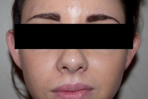 Before Photo - Ear Surgery - Case #11205 - Otoplasty - Frontal View