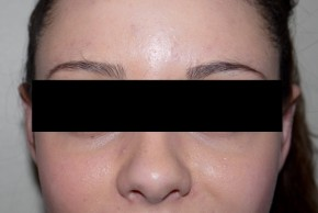 After Photo - Ear Surgery - Case #11205 - Otoplasty - Frontal View