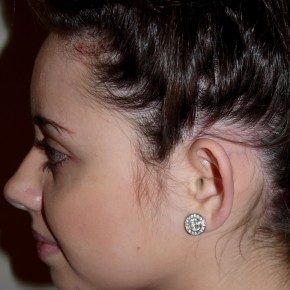 Before Photo - Ear Surgery - Case #11205 - Otoplasty - Lateral View