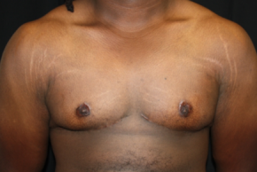 After Photo - Gynecomastia - Case #11208 - 22 year old Gynecomastia - Frontal View