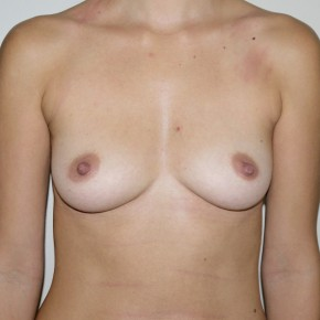 Before Photo - Breast Augmentation - Case #11219 - Silicone Submuscular Breast Augmentation - Frontal View