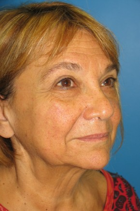 Before Photo - Facelift - Case #11221 - Oblique View