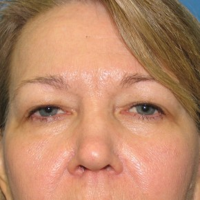 Before Photo - Eyelid Surgery - Case #11226 - Upper Eyelid Surgery - Frontal View