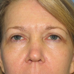 After Photo - Eyelid Surgery - Case #11226 - Upper Eyelid Surgery - Frontal View