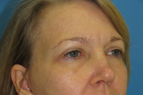 After Photo - Eyelid Surgery - Case #11226 - Upper Eyelid Surgery - Oblique View