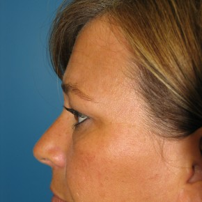 Before Photo - Eyelid Surgery - Case #11227 - Upper and Lower Eyelid Surgery - Lateral View