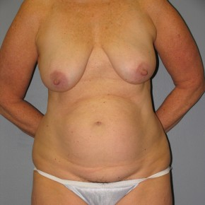 Before Photo - Tummy Tuck - Case #11228 - Mommy Makeover - Frontal View