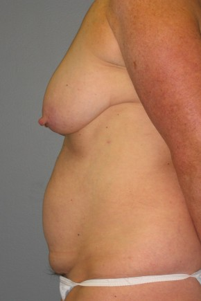 Before Photo - Tummy Tuck - Case #11228 - Mommy Makeover - Lateral View