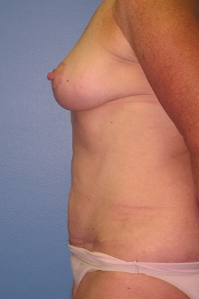 After Photo - Tummy Tuck - Case #11228 - Mommy Makeover - Lateral View