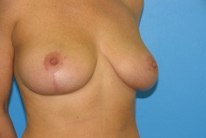 After Photo - Breast Lift - Case #11131 - Breast lift/reduction for asymmetry - Oblique View