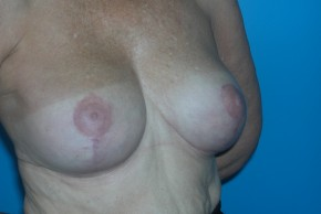 After Photo - Breast Lift - Case #11113 - Oblique View