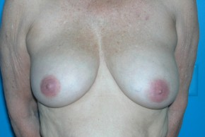 Before Photo - Breast Lift - Case #11113 - Frontal View