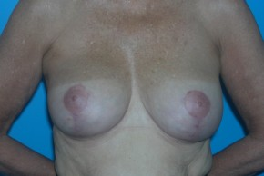 After Photo - Breast Lift - Case #11113 - Frontal View