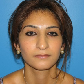 Before Photo - Nose Surgery - Case #11290 - Rhinoplasty - Frontal View