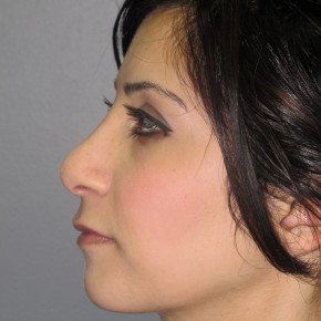 After Photo - Nose Surgery - Case #11290 - Rhinoplasty - Lateral View
