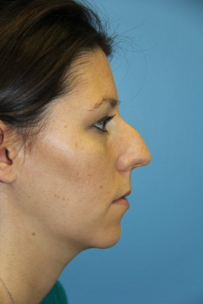 Before Photo - Nose Surgery - Case #11291 - Rhinoplasty - Lateral View