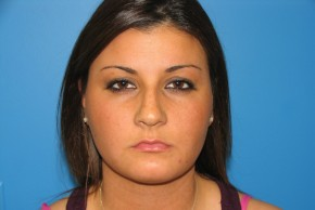 Before Photo - Nose Surgery - Case #11292 - Rhinoplasty - Frontal View