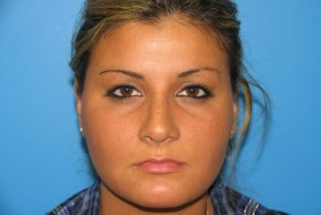 After Photo - Nose Surgery - Case #11292 - Rhinoplasty - Frontal View