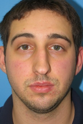 Before Photo - Nose Surgery - Case #11293 - Rhinoplasty - Frontal View